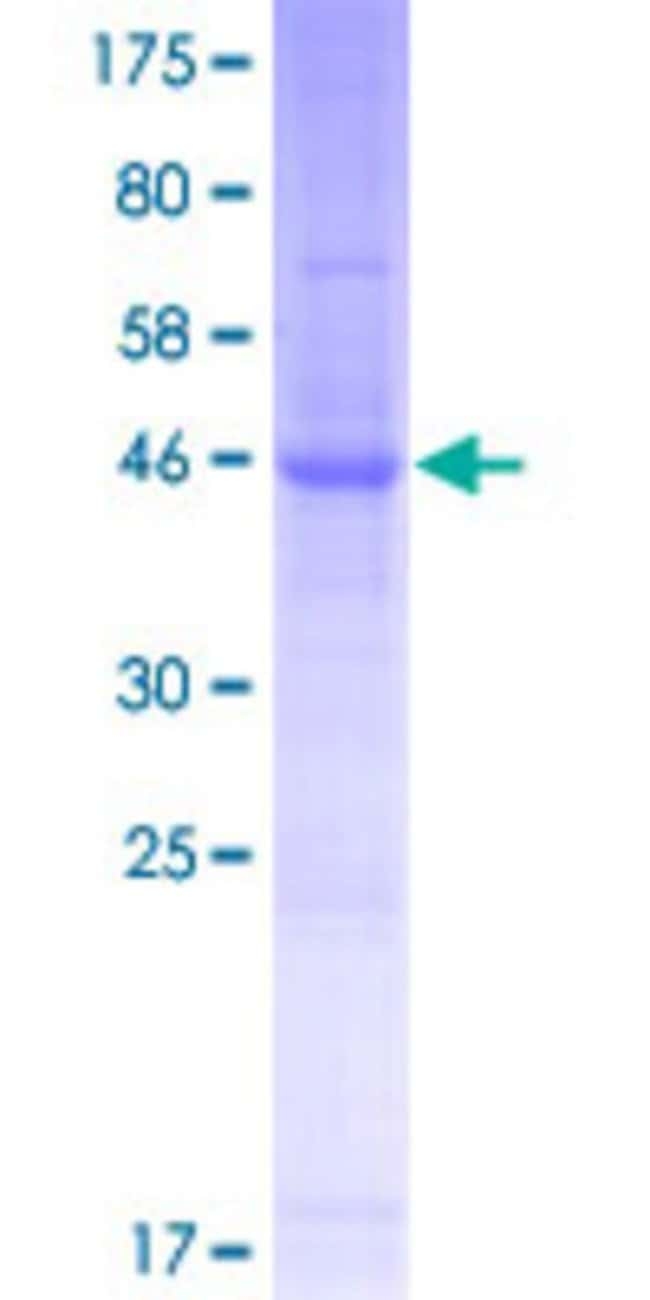 Abnova™Human LHFPL4 Full-length ORF (NP_940962.1, 1 a.a. - 247 a.a.) Recombinant Protein with GST-tag at N-terminal 10μg Abnova™Human LHFPL4 Full-length ORF (NP_940962.1, 1 a.a. - 247 a.a.) Recombinant Protein with GST-tag at N-terminal
