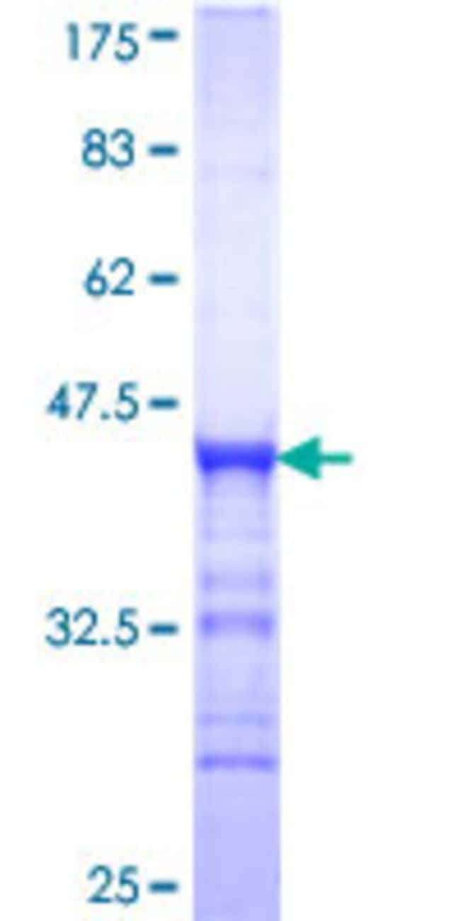 Abnova™Human MAST4 Partial ORF (XP_291141, 2605 a.a. - 2699 a.a.) Recombinant Protein with GST-tag at N-terminal 10μg Abnova™Human MAST4 Partial ORF (XP_291141, 2605 a.a. - 2699 a.a.) Recombinant Protein with GST-tag at N-terminal