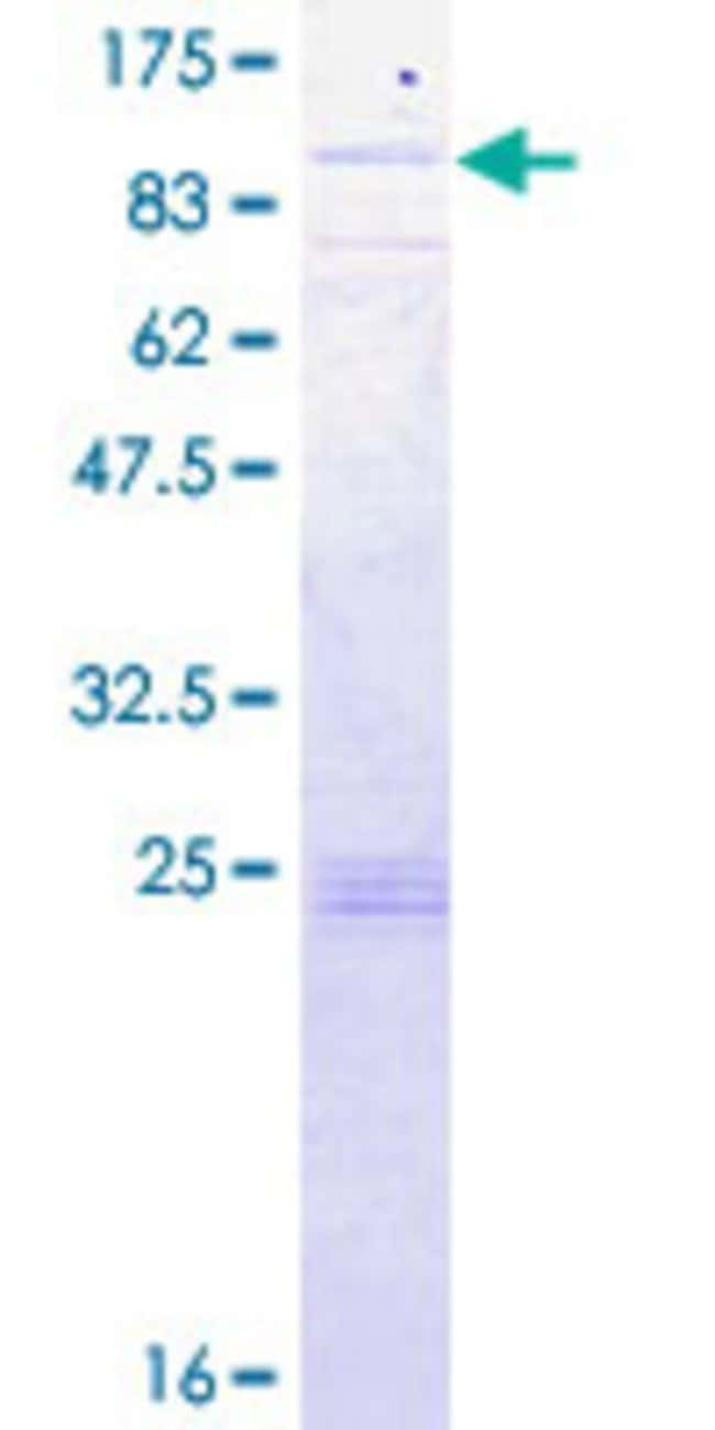 Abnova™ Human SLC27A1 Full-length ORF (NP_940982.1, 1 a.a. - 646 a.a.) Recombinant Protein with GST-tag at N-terminal 10μg Abnova™ Human SLC27A1 Full-length ORF (NP_940982.1, 1 a.a. - 646 a.a.) Recombinant Protein with GST-tag at N-terminal