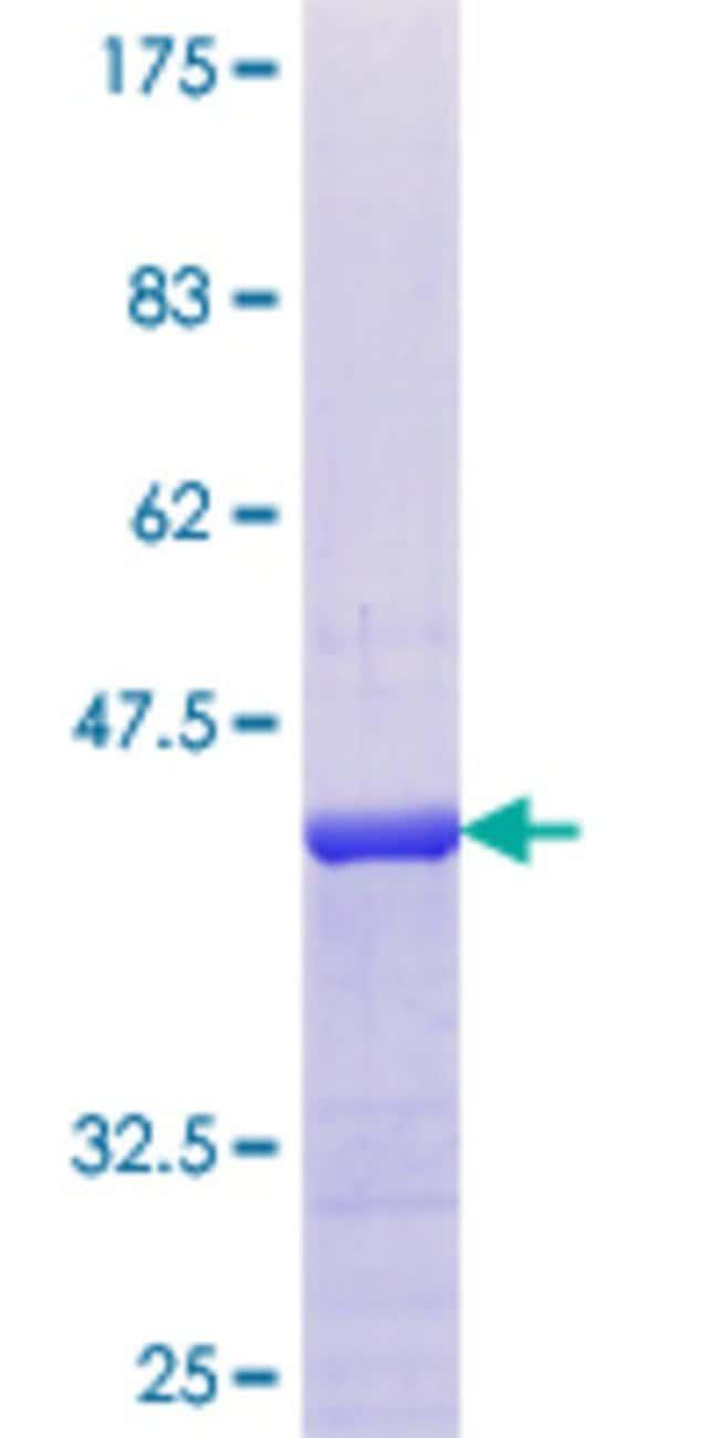 AbnovaHuman APITD1 Full-length ORF (NP_954988.1, 1 a.a. - 138 a.a.) Recombinant