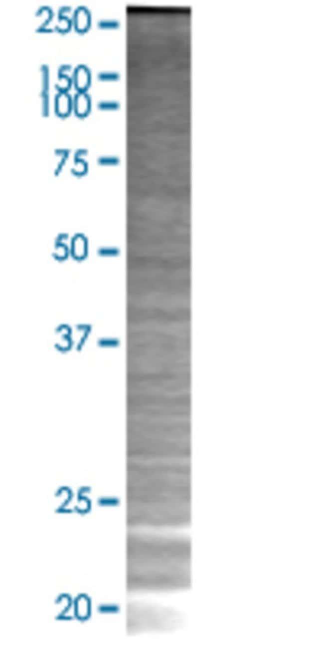 Abnova KRTAP10-2 293T Cell Transient Overexpression Lysate (Denatured)