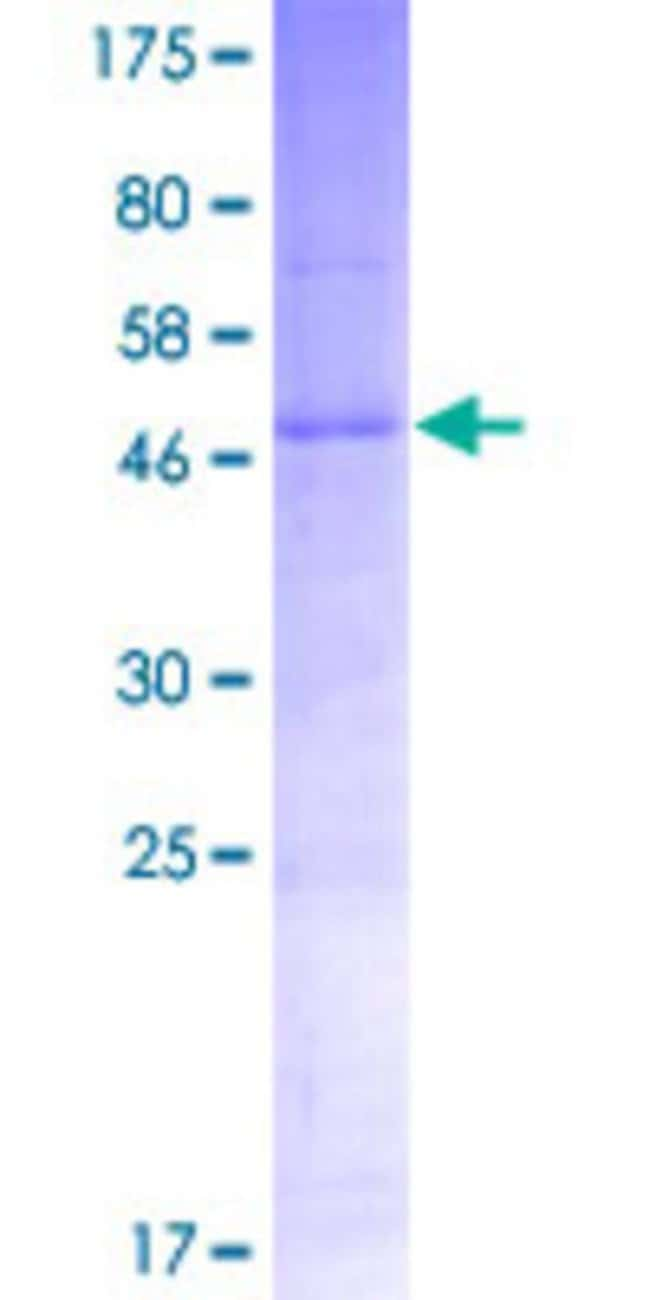 Abnova Human TMEM189 Full-length ORF (NP_954580.1, 1 a.a. - 270 a.a.) Recombinant