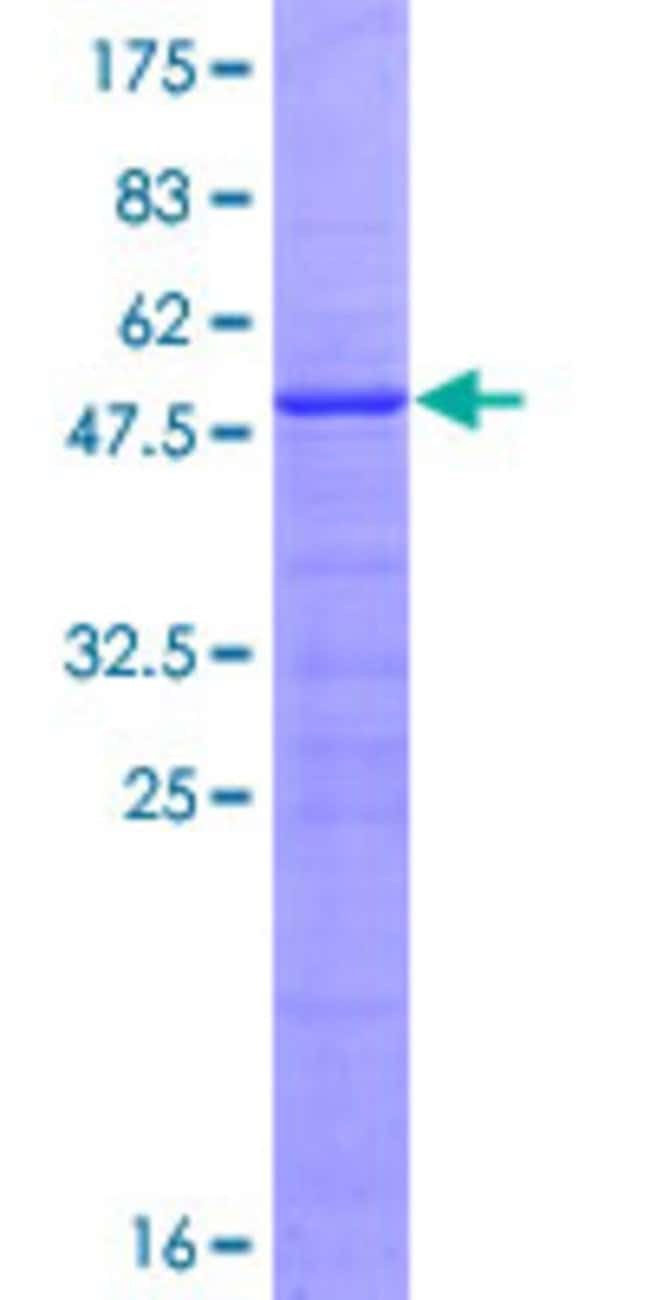 Abnova™Human LOC387907 Full-length ORF (XP_370713.1, 1 a.a. - 200 a.a.) Recombinant Protein with GST-tag at N-terminal 10μg Abnova™Human LOC387907 Full-length ORF (XP_370713.1, 1 a.a. - 200 a.a.) Recombinant Protein with GST-tag at N-terminal