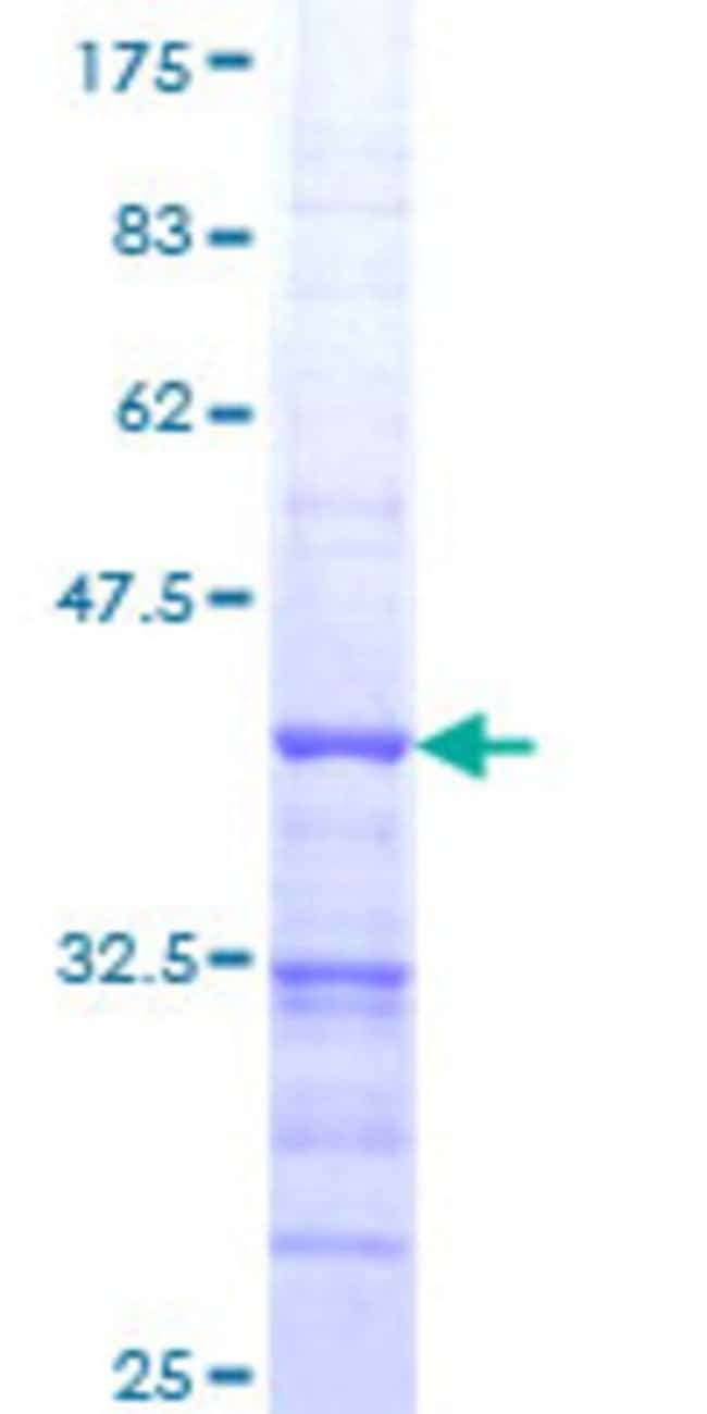 Abnova™Human FLJ46380 Partial ORF (NP_997279, 135 a.a. - 244 a.a.) Recombinant Protein with GST-tag at N-terminal 10μg Abnova™Human FLJ46380 Partial ORF (NP_997279, 135 a.a. - 244 a.a.) Recombinant Protein with GST-tag at N-terminal