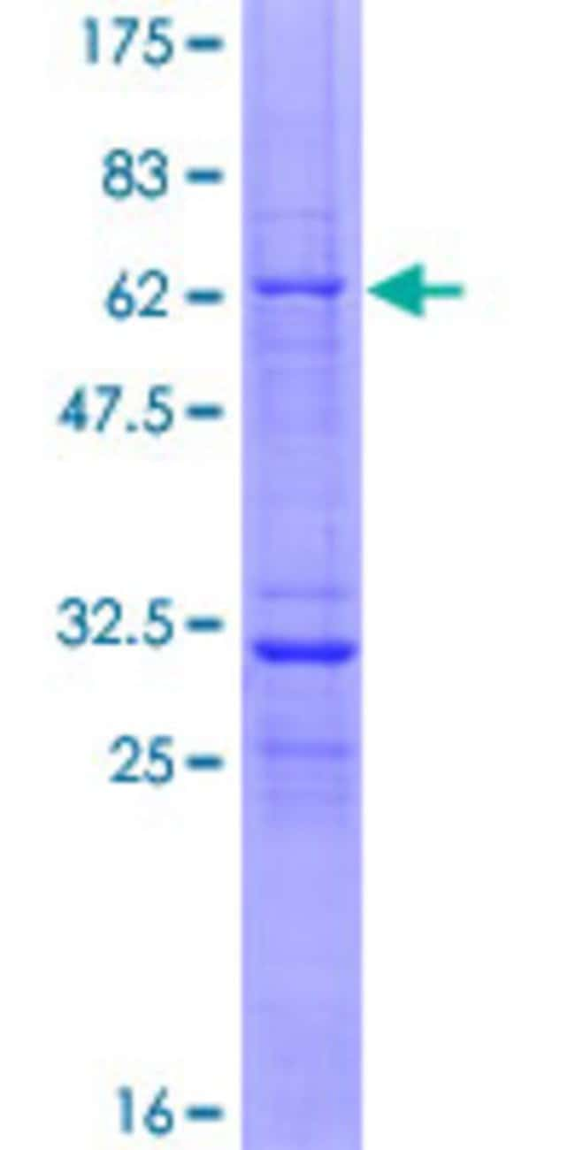 Abnova™Human VGLL3 Full-length ORF (AAH94780.1, 1 a.a. - 320 a.a.) Recombinant Protein with GST-tag at N-terminal 25μg Abnova™Human VGLL3 Full-length ORF (AAH94780.1, 1 a.a. - 320 a.a.) Recombinant Protein with GST-tag at N-terminal