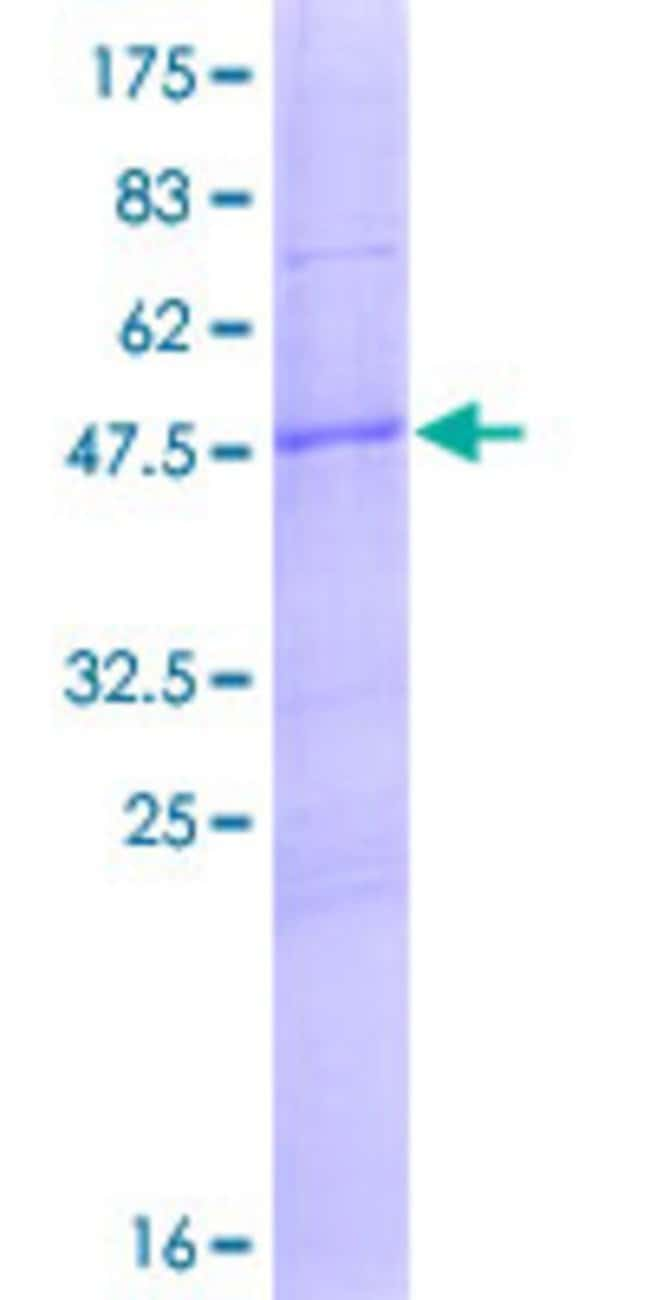 Abnova™Human ANXA2R Full-length ORF (NP_001014301.1, 1 a.a. - 193 a.a.) Recombinant Protein with GST-tag at N-terminal 10μg Abnova™Human ANXA2R Full-length ORF (NP_001014301.1, 1 a.a. - 193 a.a.) Recombinant Protein with GST-tag at N-terminal