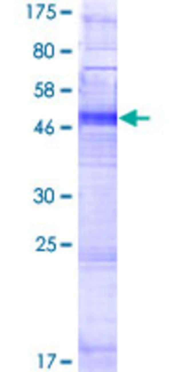 Abnova™Human OR4K2 Full-length ORF (NP_001005501.1, 1 a.a. - 314 a.a.) Recombinant Protein with GST-tag at N-terminal 25μg Abnova™Human OR4K2 Full-length ORF (NP_001005501.1, 1 a.a. - 314 a.a.) Recombinant Protein with GST-tag at N-terminal