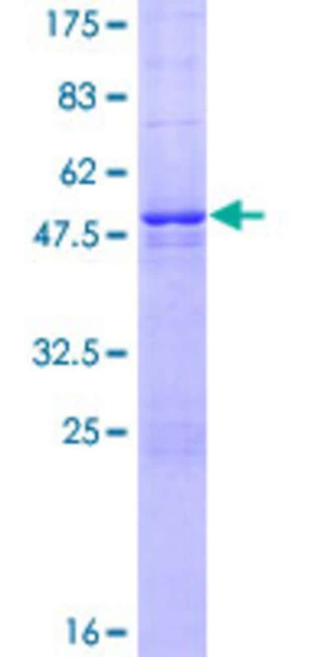 Abnova™Human LOC391746 Full-length ORF (XP_373058.2, 1 a.a. - 198 a.a.) Recombinant Protein with GST-tag at N-terminal 25μg Abnova™Human LOC391746 Full-length ORF (XP_373058.2, 1 a.a. - 198 a.a.) Recombinant Protein with GST-tag at N-terminal