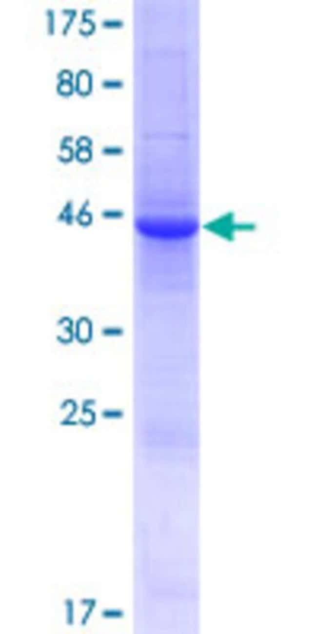 Abnova™Human LCN9 Full-length ORF (AAI48848.1, 1 a.a. - 176 a.a.) Recombinant Protein with GST-tag at N-terminal 10μg Abnova™Human LCN9 Full-length ORF (AAI48848.1, 1 a.a. - 176 a.a.) Recombinant Protein with GST-tag at N-terminal