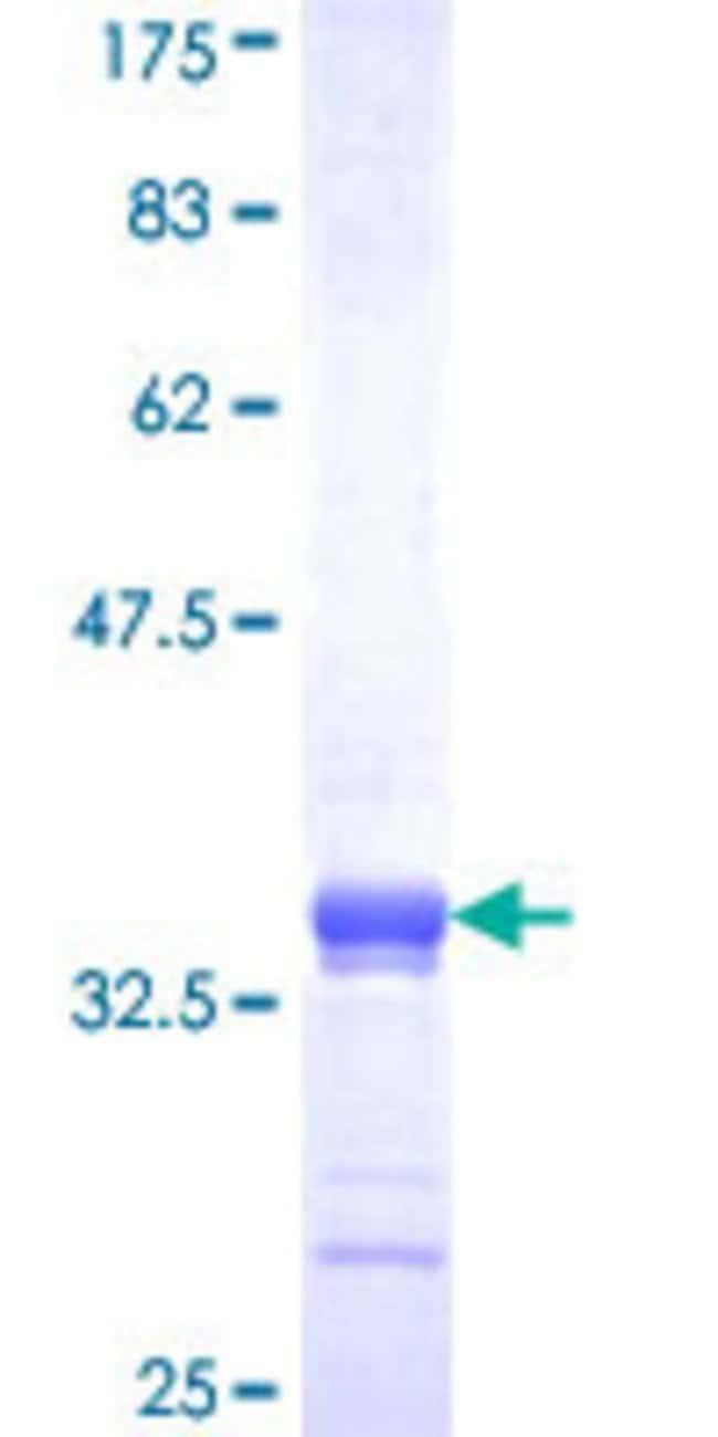 Abnova™Human RKHD1 Partial ORF (NP_976049, 418 a.a. - 488 a.a.) Recombinant Protein with GST-tag at N-terminal 10μg Abnova™Human RKHD1 Partial ORF (NP_976049, 418 a.a. - 488 a.a.) Recombinant Protein with GST-tag at N-terminal
