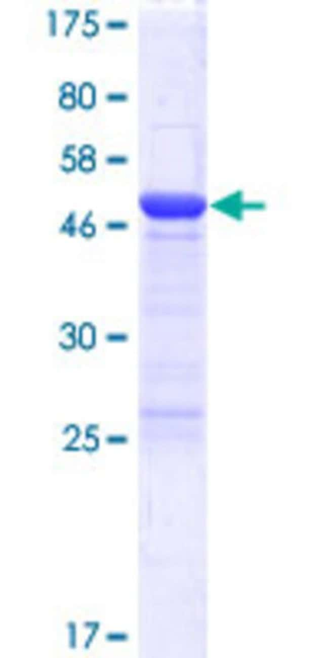 Abnova™Human FAM102A Full-length ORF (NP_976050.1, 1 a.a. - 242 a.a.) Recombinant Protein with GST-tag at N-terminal 25μg Abnova™Human FAM102A Full-length ORF (NP_976050.1, 1 a.a. - 242 a.a.) Recombinant Protein with GST-tag at N-terminal