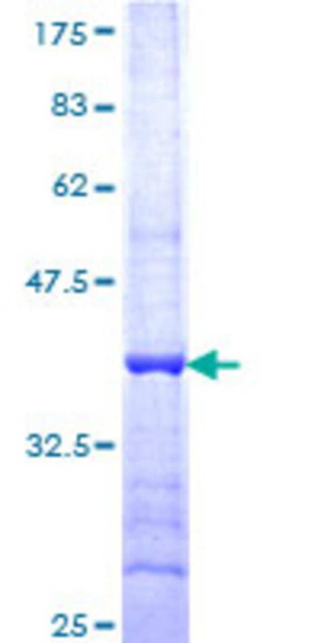 Abnova Human HAPLN4 Partial ORF (NP_075378, 30 a.a. - 134 a.a.) Recombinant