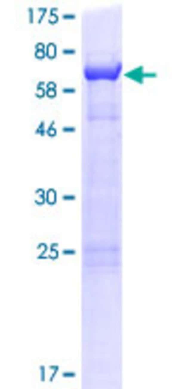 Abnova™Human CUEDC1 Full-length ORF (NP_060419.1, 1 a.a. - 386 a.a.) Recombinant Protein with GST-tag at N-terminal 25μg Abnova™Human CUEDC1 Full-length ORF (NP_060419.1, 1 a.a. - 386 a.a.) Recombinant Protein with GST-tag at N-terminal
