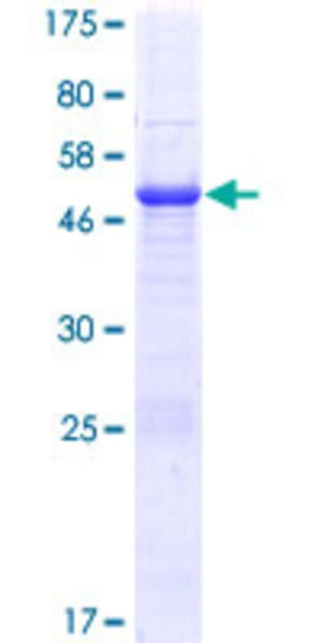 Abnova™Human MGC50273 Full-length ORF (NP_999626.1, 1 a.a. - 209 a.a.) Recombinant Protein with GST-tag at N-terminal 25μg Abnova™Human MGC50273 Full-length ORF (NP_999626.1, 1 a.a. - 209 a.a.) Recombinant Protein with GST-tag at N-terminal
