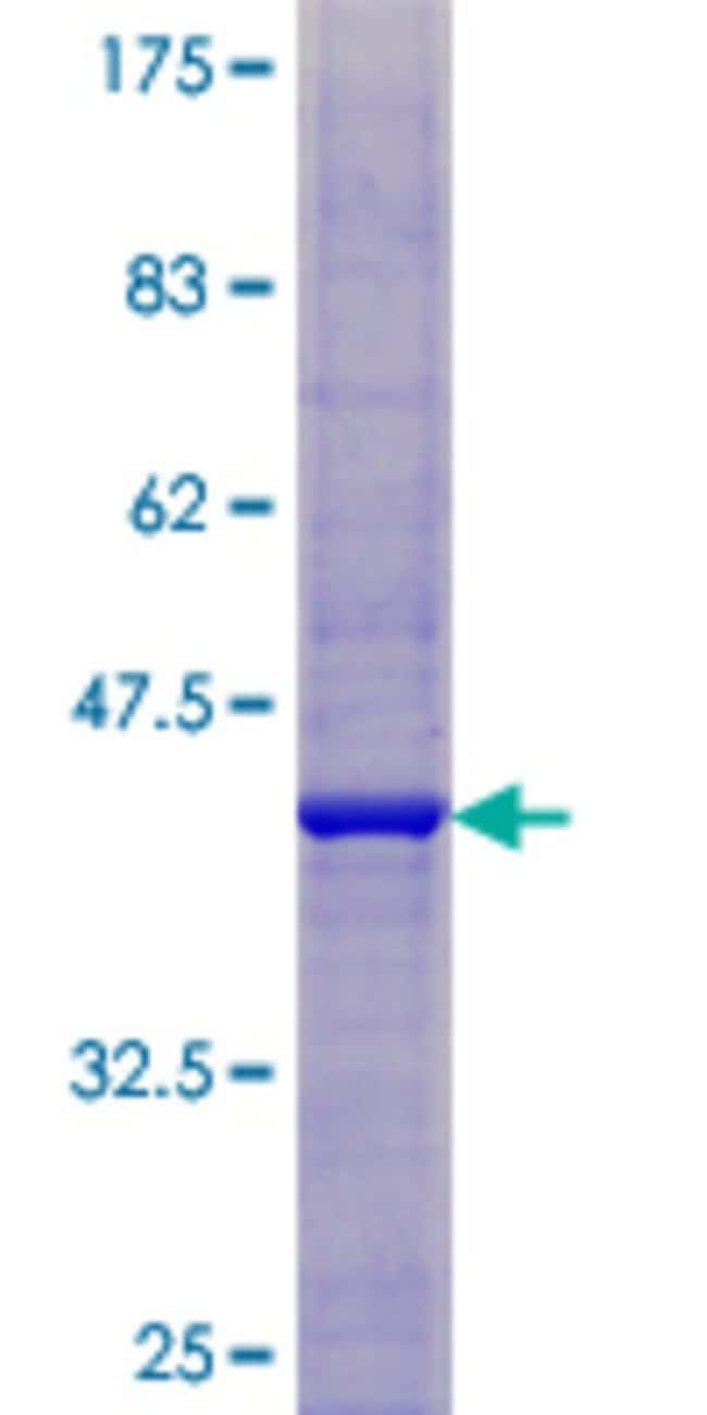 Abnova™Human C9orf103 Full-length ORF (NP_001001551.1, 1 a.a. - 141 a.a.) Recombinant Protein with GST-tag at N-terminal 25μg Abnova™Human C9orf103 Full-length ORF (NP_001001551.1, 1 a.a. - 141 a.a.) Recombinant Protein with GST-tag at N-terminal