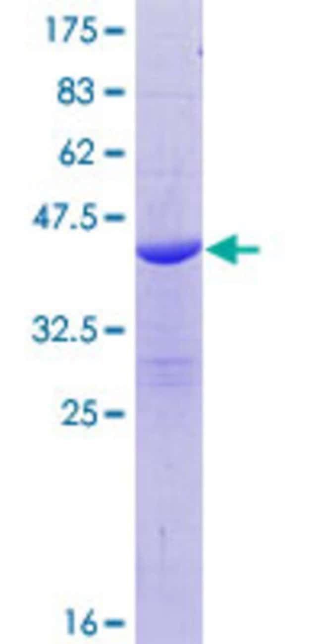Abnova™Human BLID Full-length ORF (NP_001001786.1, 1 a.a. - 108 a.a.) Recombinant Protein with GST-tag at N-terminal 25μg Abnova™Human BLID Full-length ORF (NP_001001786.1, 1 a.a. - 108 a.a.) Recombinant Protein with GST-tag at N-terminal