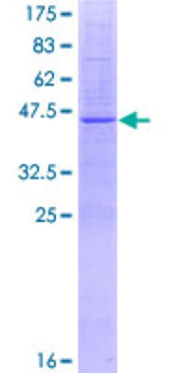 Abnova™Human TMEM41B Full-length ORF (AAH35034.1, 1 a.a. - 192 a.a.) Recombinant Protein with GST-tag at N-terminal 25μg Abnova™Human TMEM41B Full-length ORF (AAH35034.1, 1 a.a. - 192 a.a.) Recombinant Protein with GST-tag at N-terminal