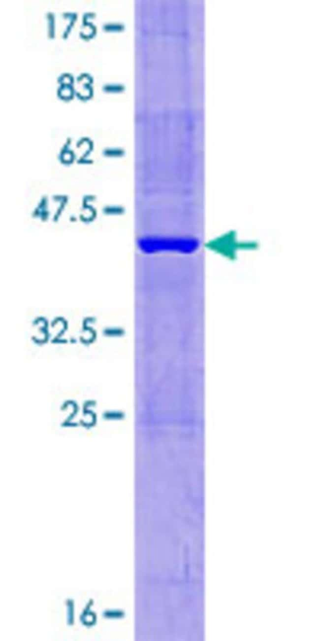Abnova™Human MTHFD2L Full-length ORF (AAH32771.1, 1 a.a. - 146 a.a.) Recombinant Protein with GST-tag at N-terminal 10μg Abnova™Human MTHFD2L Full-length ORF (AAH32771.1, 1 a.a. - 146 a.a.) Recombinant Protein with GST-tag at N-terminal