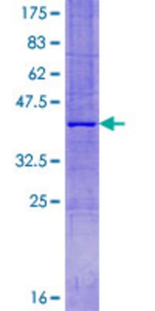 Abnova™Human CISD2 Full-length ORF (NP_001008389.1, 1 a.a. - 135 a.a.) Recombinant Protein with GST-tag at N-terminal 10μg Abnova™Human CISD2 Full-length ORF (NP_001008389.1, 1 a.a. - 135 a.a.) Recombinant Protein with GST-tag at N-terminal