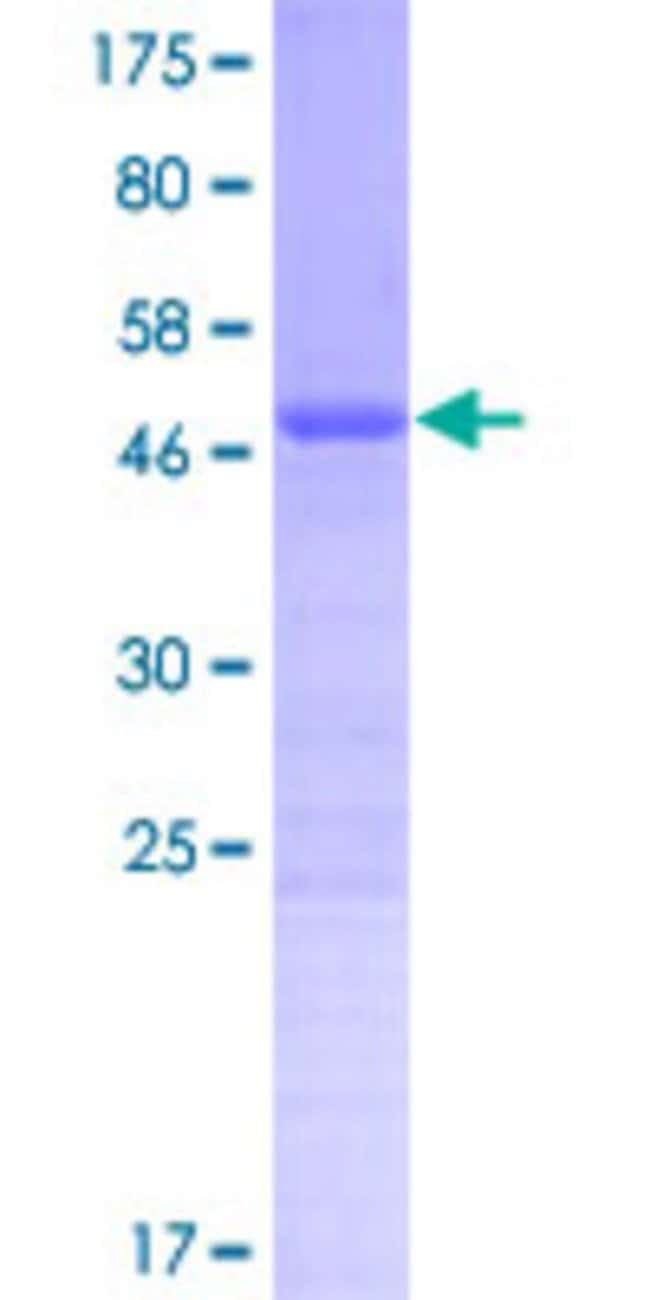 Abnova™Human XX-FW88277B6.1 Full-length ORF (NP_001017417.1, 1 a.a. - 189 a.a.) Recombinant Protein with GST-tag at N-terminal 25μg Abnova™Human XX-FW88277B6.1 Full-length ORF (NP_001017417.1, 1 a.a. - 189 a.a.) Recombinant Protein with GST-tag at N-terminal