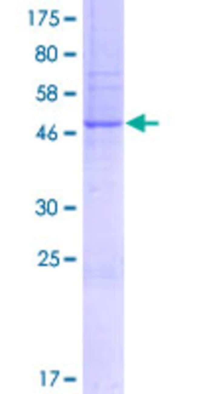 Abnova™Human DPY19L2P1 Full-length ORF (AAH66987.1, 1 a.a. - 242 a.a.) Recombinant Protein with GST-tag at N-terminal 10μg Abnova™Human DPY19L2P1 Full-length ORF (AAH66987.1, 1 a.a. - 242 a.a.) Recombinant Protein with GST-tag at N-terminal