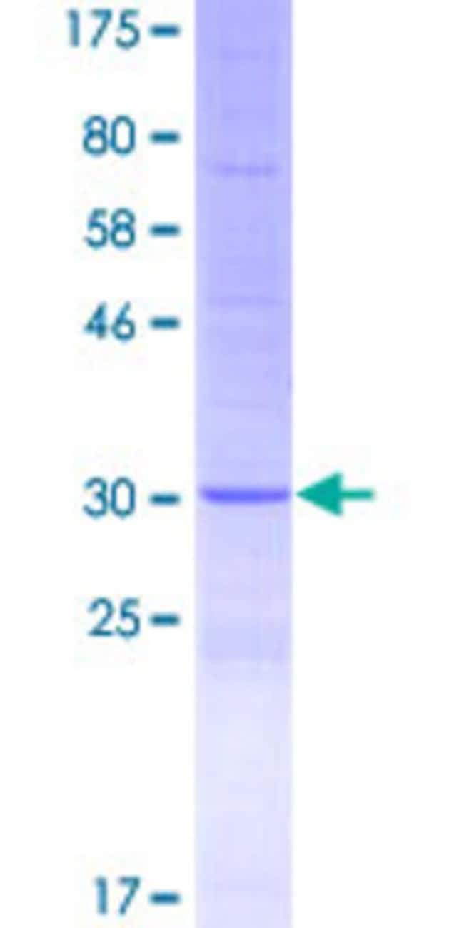 Abnova™Human DEFB136 Full-length ORF (AAI46564.1, 1 a.a. - 77 a.a.) Recombinant Protein with GST-tag at N-terminal 25μg Abnova™Human DEFB136 Full-length ORF (AAI46564.1, 1 a.a. - 77 a.a.) Recombinant Protein with GST-tag at N-terminal