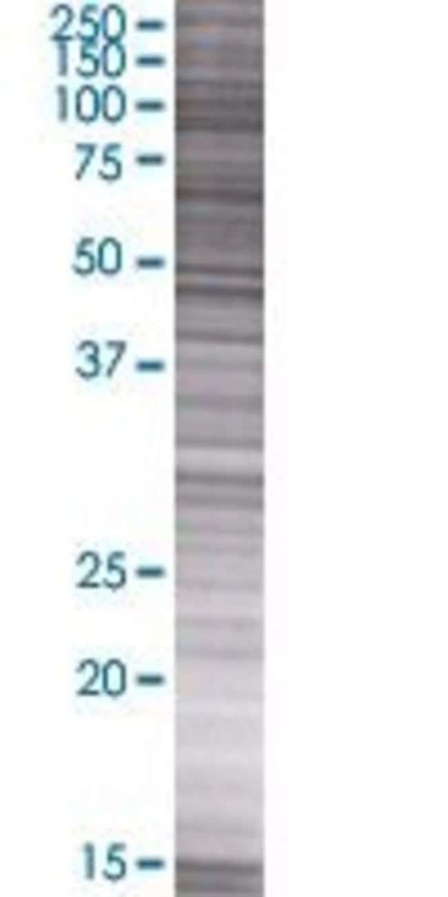 Abnova LOC619207 293T Cell Transient Overexpression Lysate (Denatured)