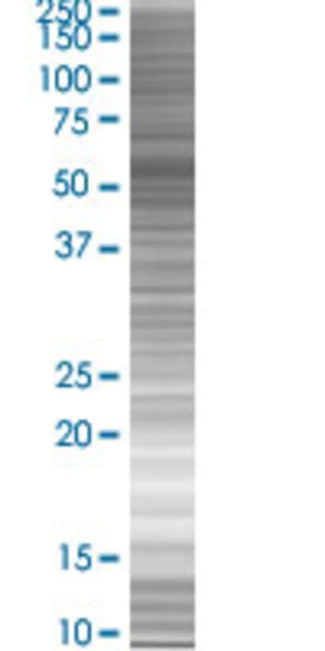 Abnova ZBTB8 293T Cell Transient Overexpression Lysate (Denatured) 100µL:Life