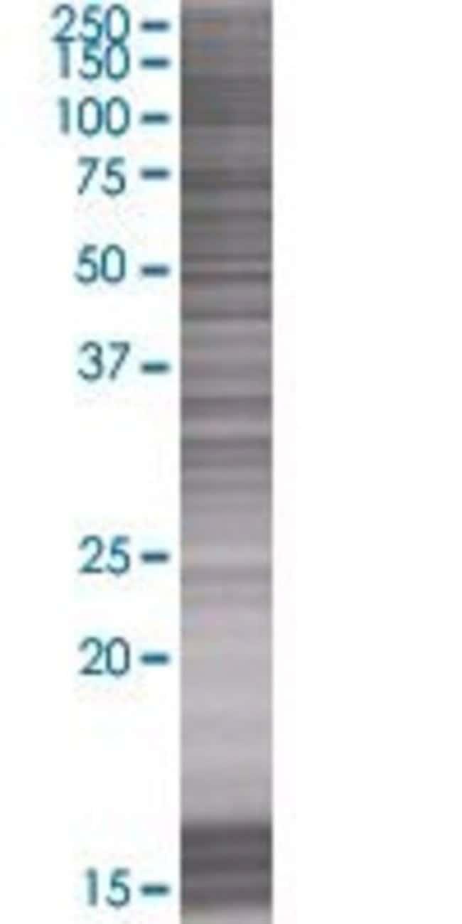 AbnovaLOC653107 293T Cell Transient Overexpression Lysate (Denatured) 100μL:Protein