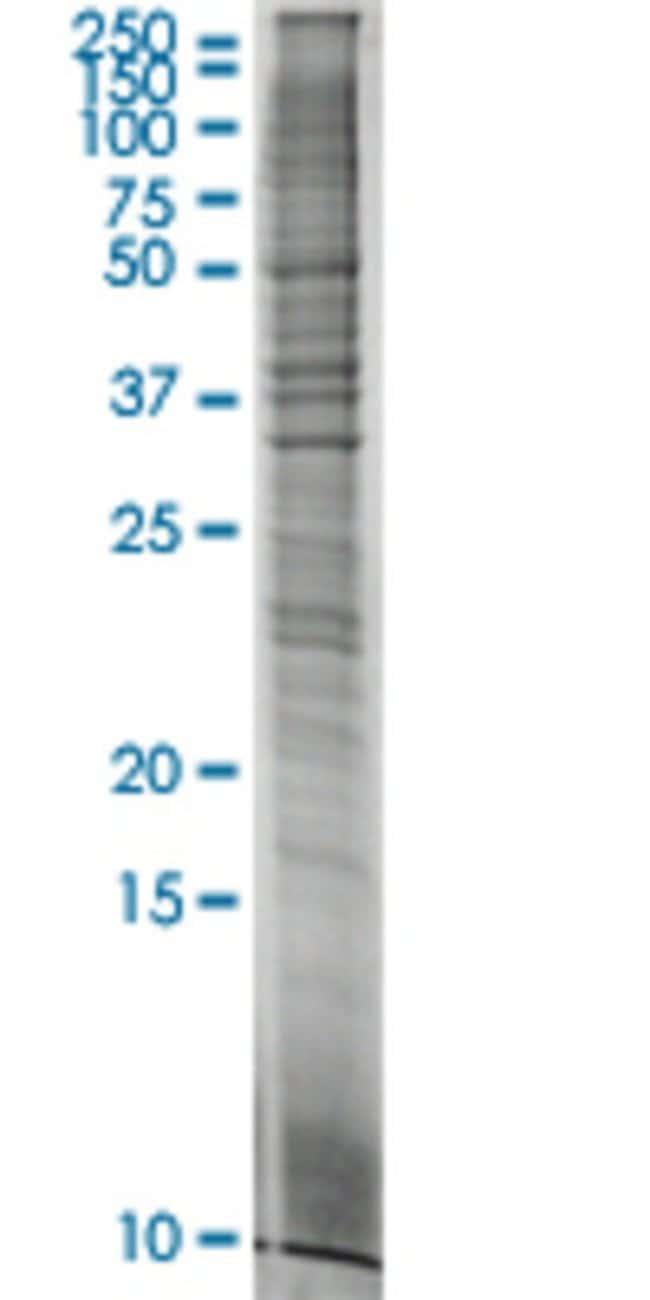 AbnovaAFP HEK293 Cell Transient Overexpression Lysate (Nondenatured) 100μg:Protein