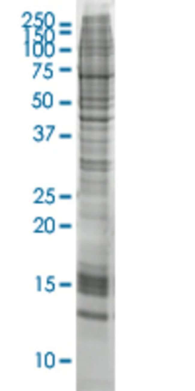 AbnovaAGR2 HEK293 Cell Transient Overexpression Lysate (Nondenatured) 100μg:Protein