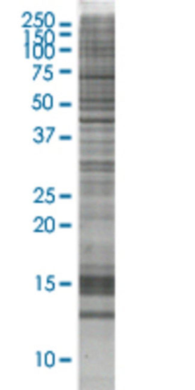 AbnovaAGT HEK293 Cell Transient Overexpression Lysate (Nondenatured) 100μg:Protein