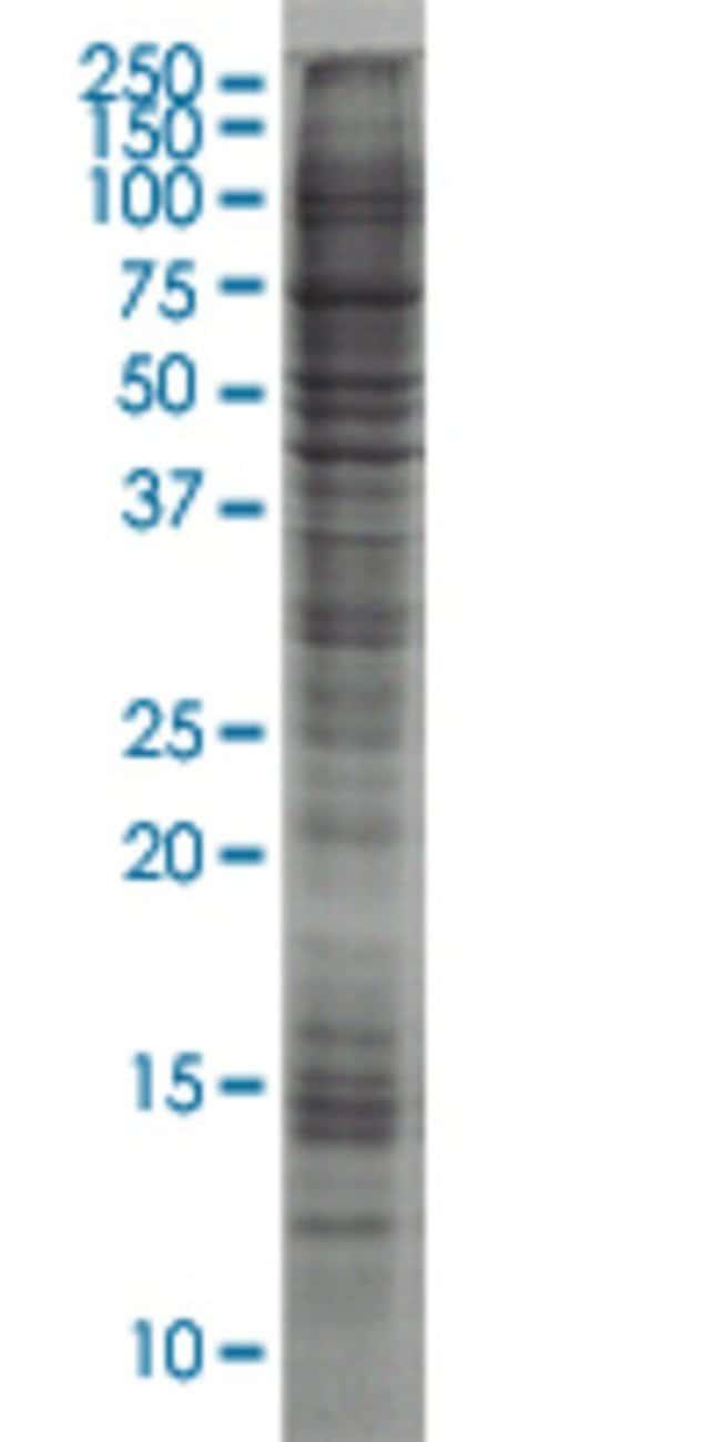 AbnovaALDOA HEK293 Cell Transient Overexpression Lysate (Nondenatured)