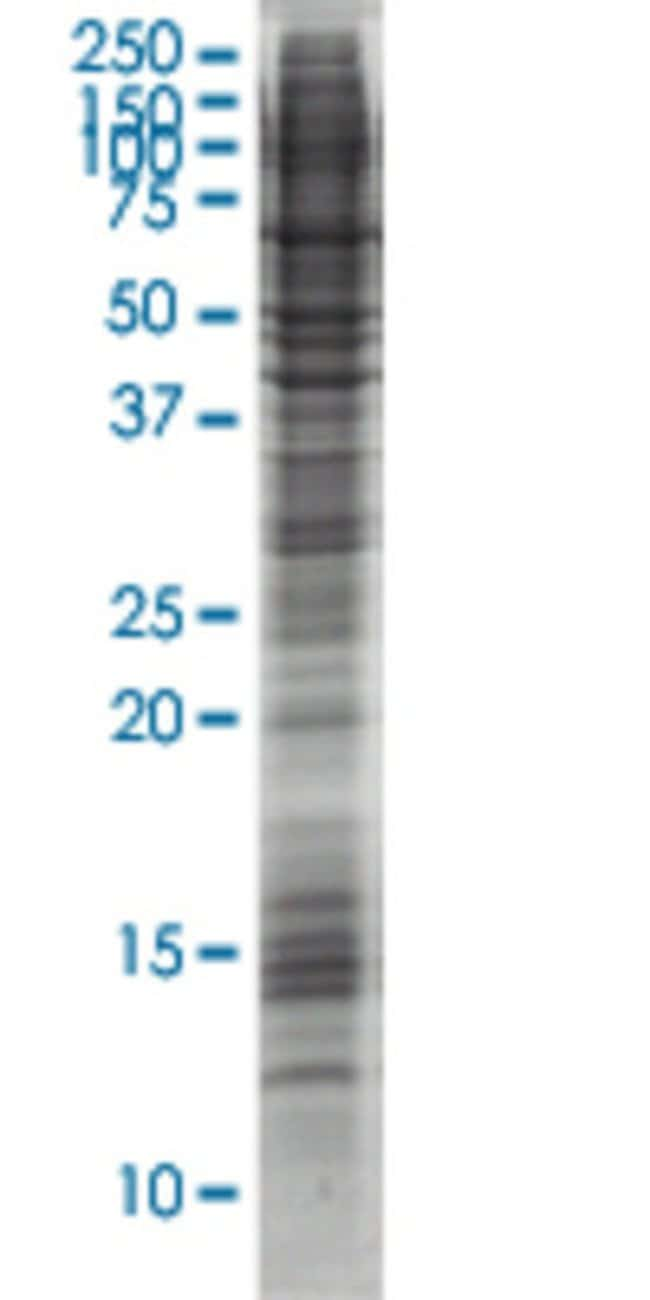 AbnovaAPOC1 HEK293 Cell Transient Overexpression Lysate (Nondenatured)