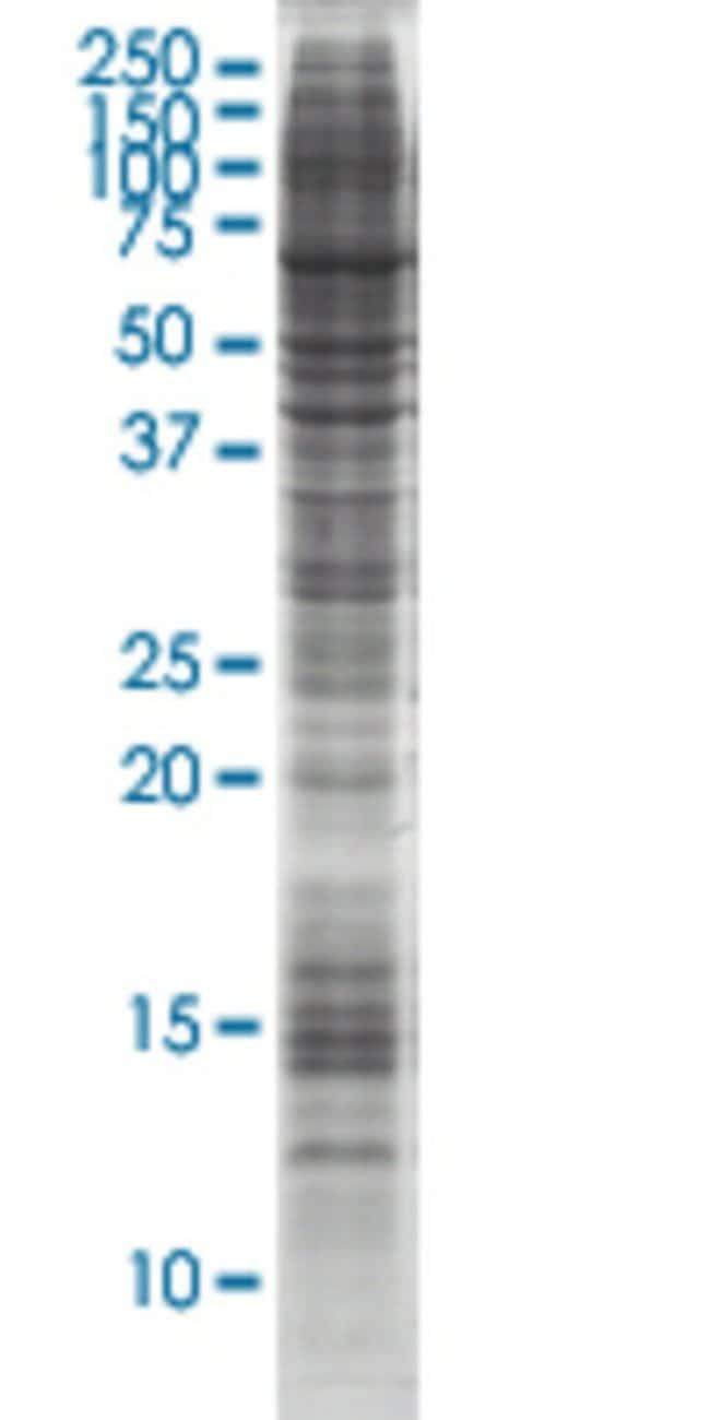 AbnovaARH HEK293 Cell Transient Overexpression Lysate (Nondenatured) 100μg:Protein