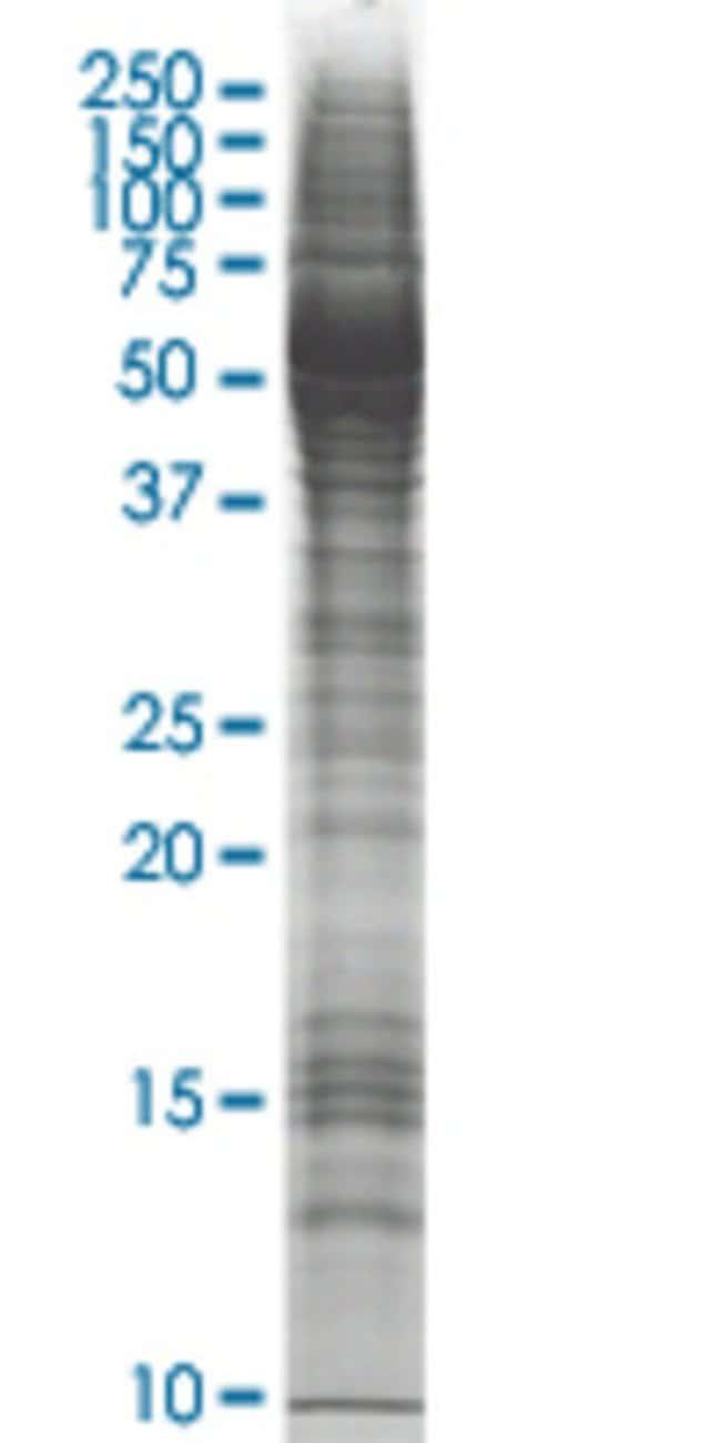 AbnovaABHD5 HEK293 Cell Transient Overexpression Lysate (Nondenatured)