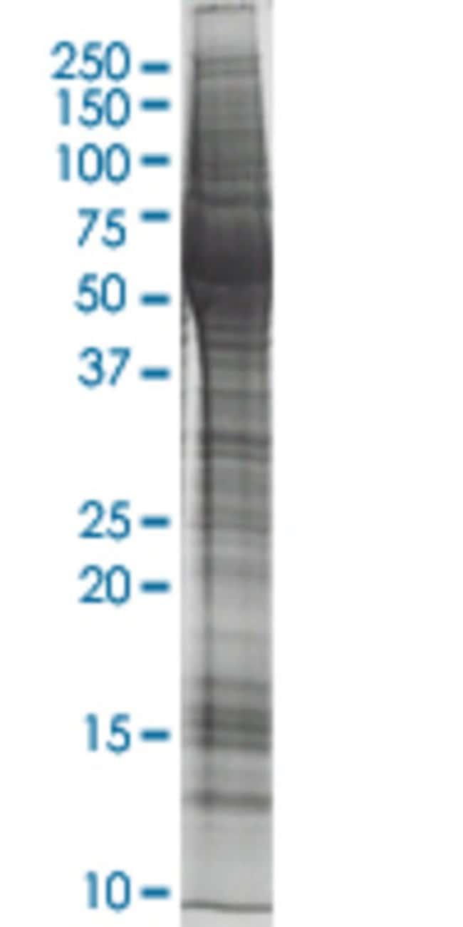 AbnovaAXL HEK293 Cell Transient Overexpression Lysate (Nondenatured) 100μg:Protein