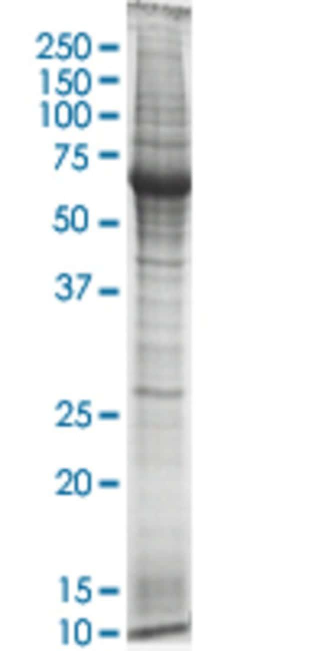 Abnova HMGB2 HEK293 Cell Transient Overexpression Lysate (Nondenatured)