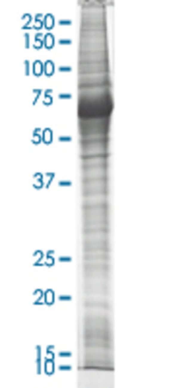 Abnova LIMK2 HEK293 Cell Transient Overexpression Lysate (Nondenatured)