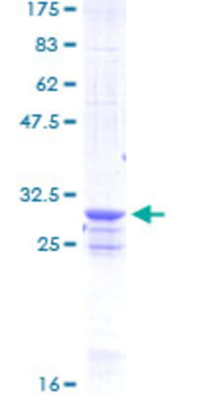 Abnova™GST Full-length ORF (AAB37352, 1 a.a. - 242 a.a.) Protein 10ug Abnova™GST Full-length ORF (AAB37352, 1 a.a. - 242 a.a.) Protein