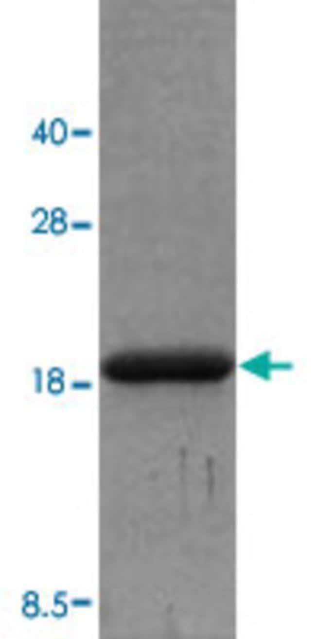 Abnova Human IL18 (NP_001553, 37 a.a. - 193 a.a. ) Partial Recombinant