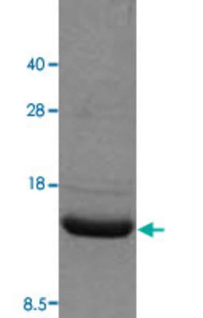 Abnova Human IL2 (NP_000577, 22 a.a. - 153 a.a.) Partial Recombinant Protein