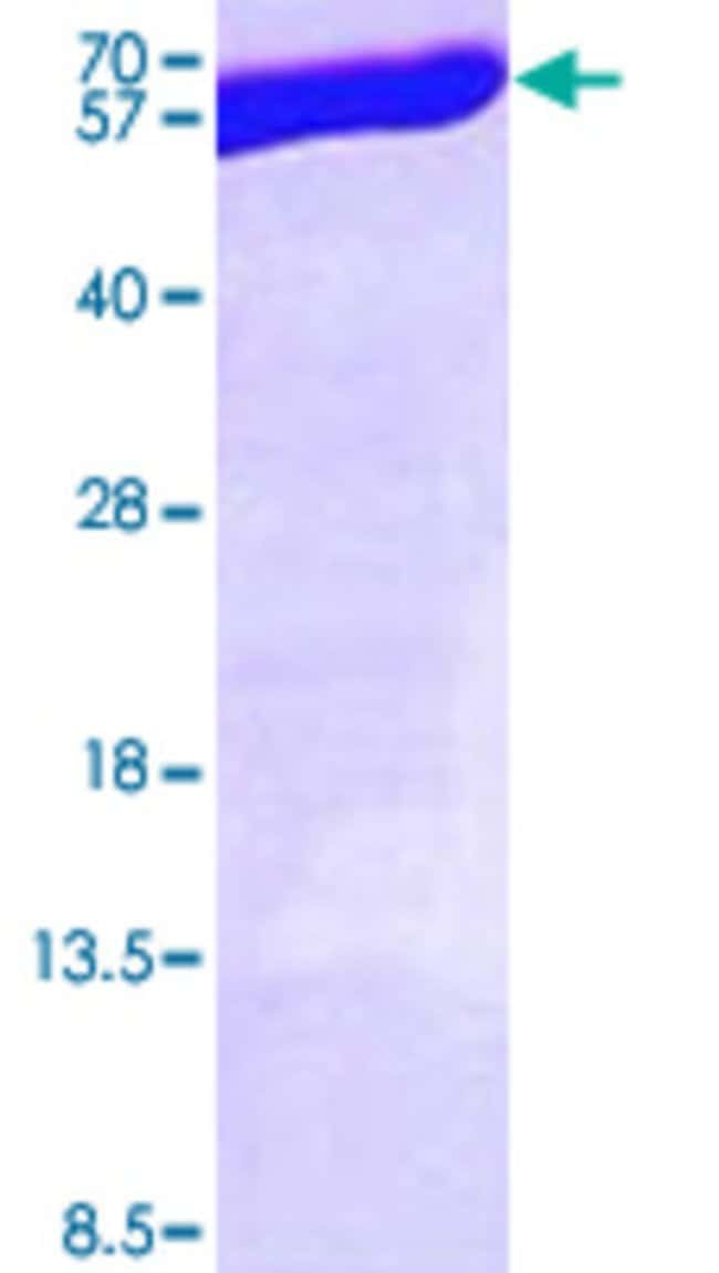 AbnovaHuman ALDH3A1 (AAH04370, 1 a.a. - 453 a.a.) Full-length Recombinant