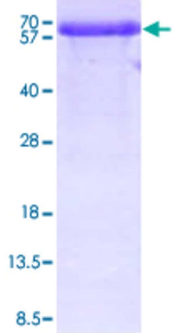 Abnova Human PPIL2 (NP_680481, 1 a.a. - 527 a.a.) Full-length Recombinant