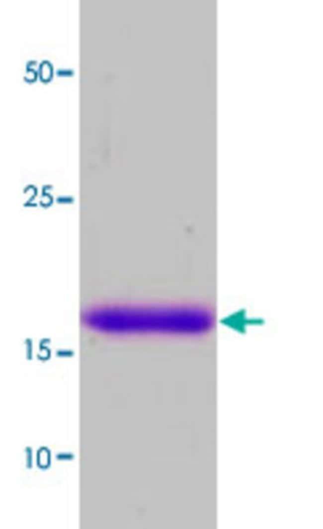 Abnova Human KIR3DL1 (NP_037421, 361 a.a. - 444 a.a.) Partial Recombinant