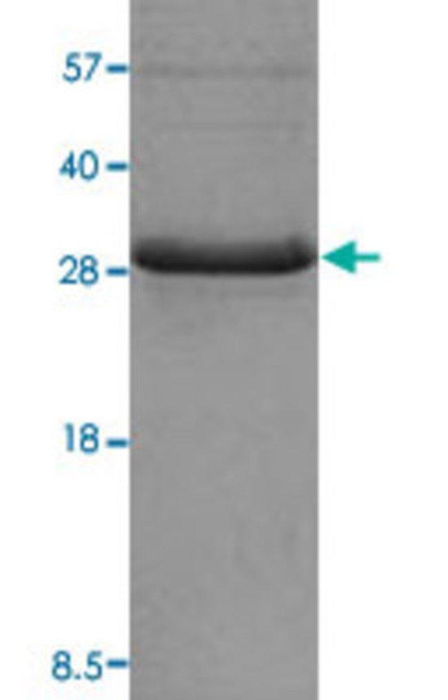AbnovaHuman ADIPOQ (NP_004788, 15 a.a. - 244 a.a.) Partial Recombinant