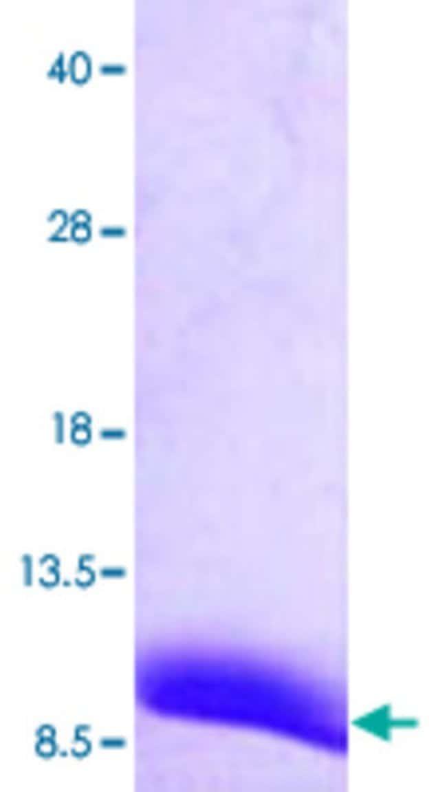 AbnovaHuman ATOX1 (NP_004036, 1 a.a. - 68 a.a.) Full-length Recombinant