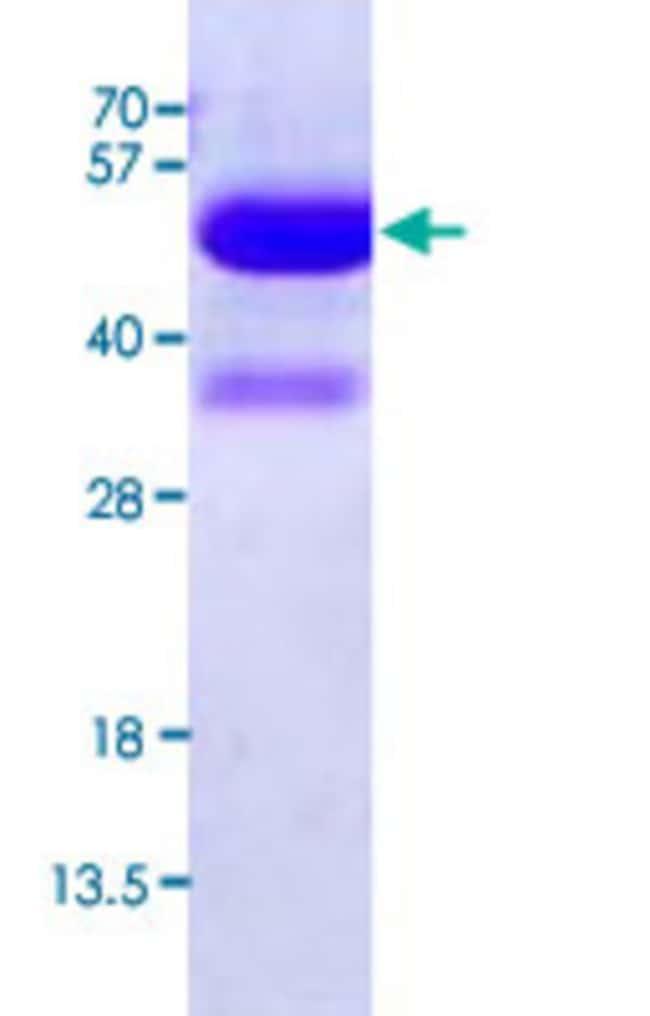 Abnova Human KAT2A (NP_066564, 411 a.a. - 837 a.a. ) Full-length Recombinant