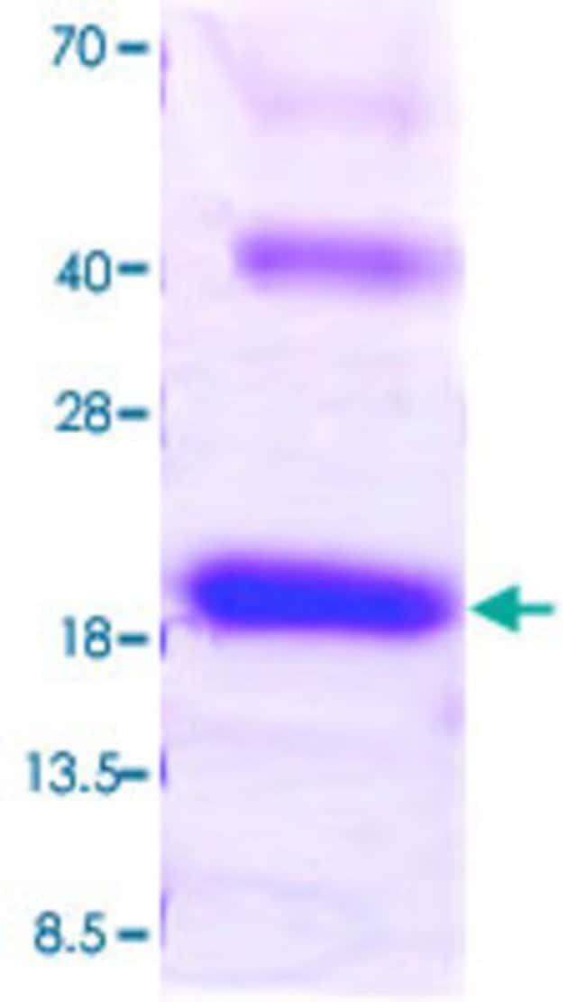 Abnova Mouse Il18 (NP_032386, 36 a.a. - 192 a.a.) Partial Recombinant Protein