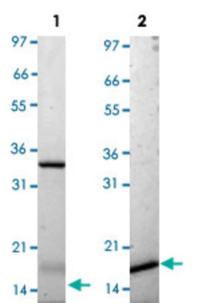 Abnova Mouse Il25 (Q8VHC9) Recombinant Protein 25µg:Life Sciences